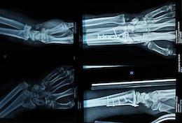 Lourdes Injury Update: Oscar Harnstrom