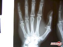 Broken hand after crash