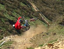 Pinkbike Poll: Mountain Biking Injuries